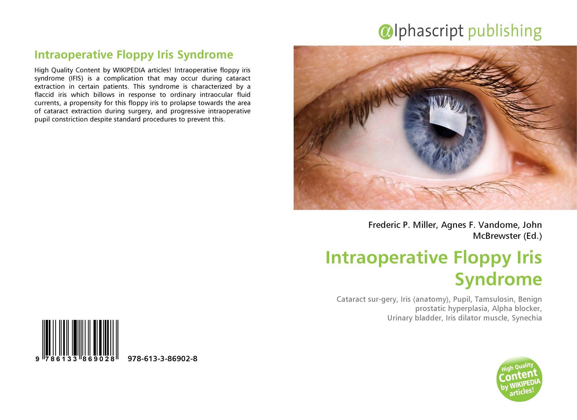 Intraoperative Floppy Iris Syndrome, 978-613-3-86902-8, 613386902X ...