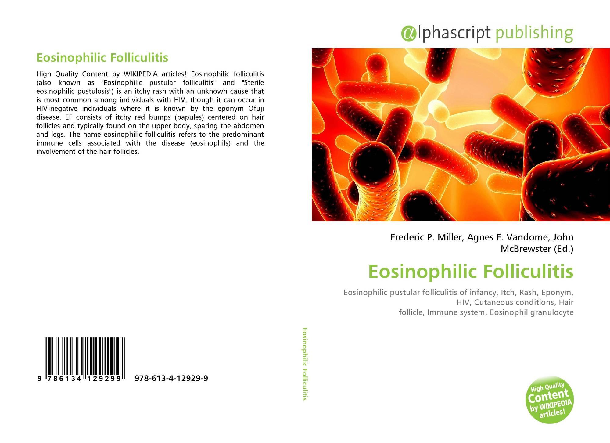 Eosinophilic Folliculitis 978 613 4 12929 9 6134129291