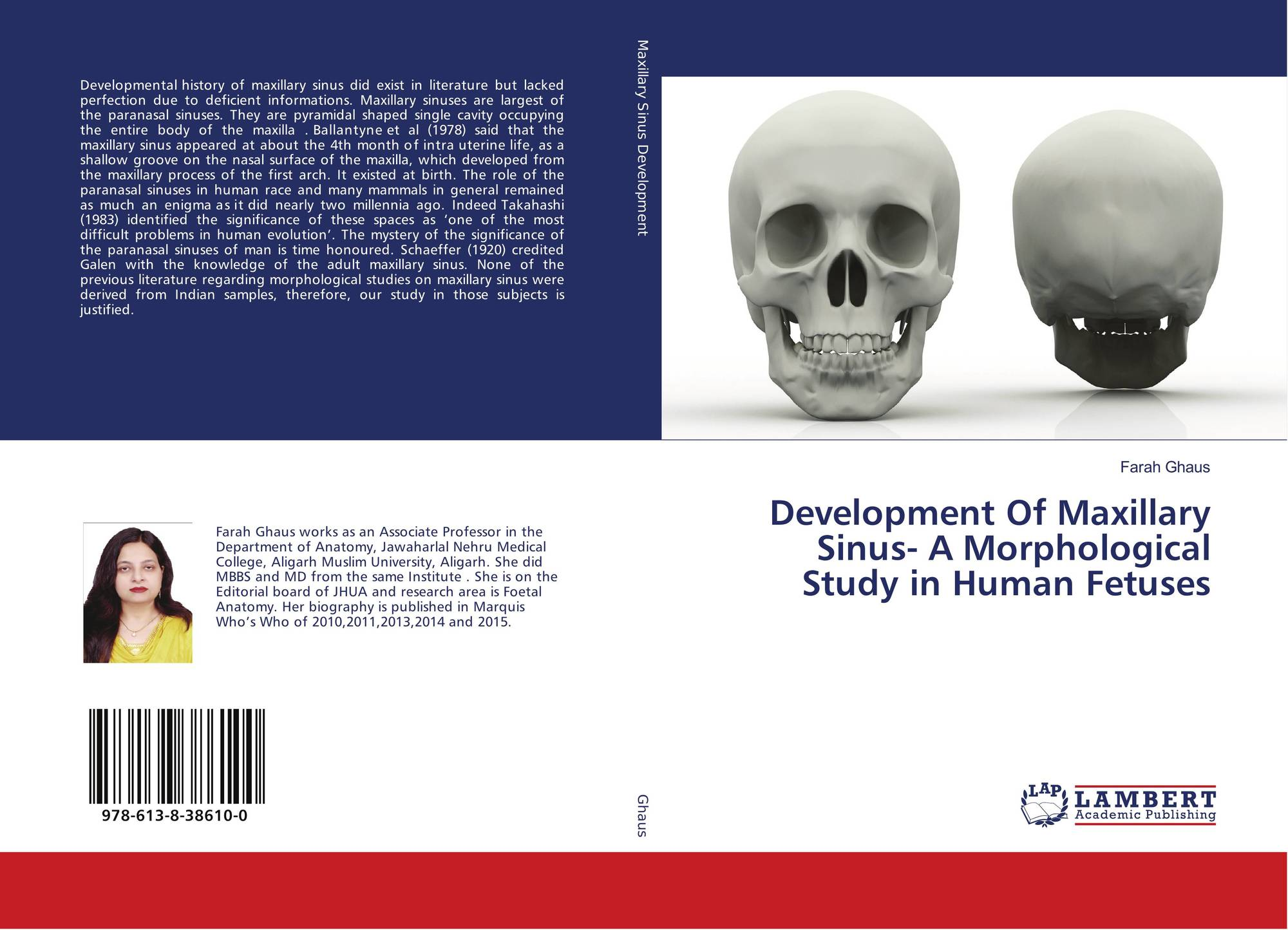 Development Of Maxillary Sinus- A Morphological Study in Human ...