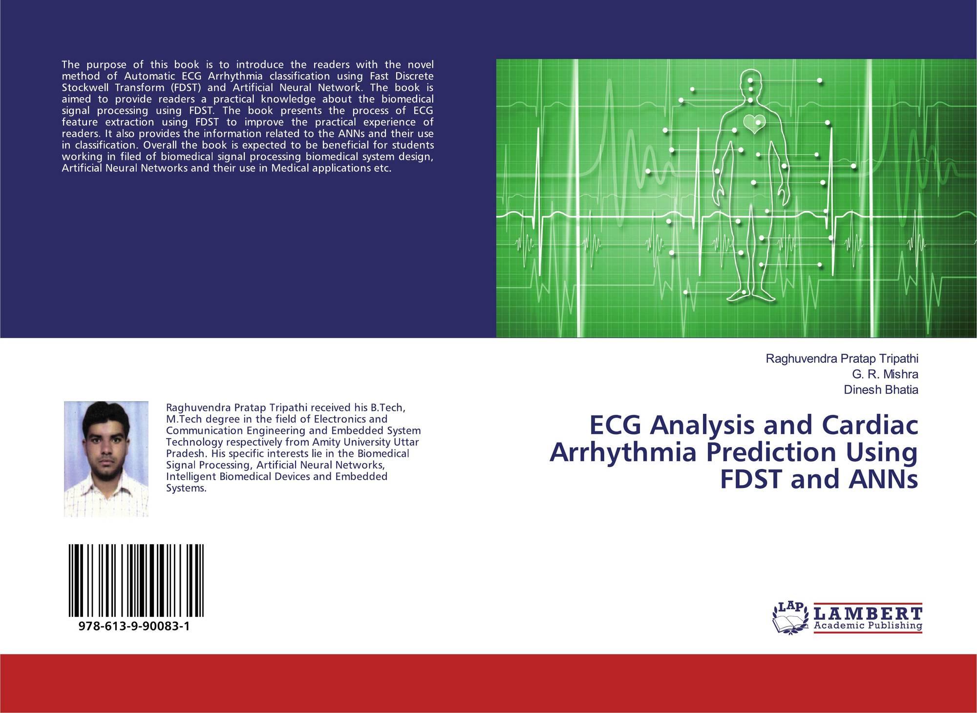 ECG ANALYSIS AND CARDIAC ARRHYTHMIA PREDICTION USING FDST