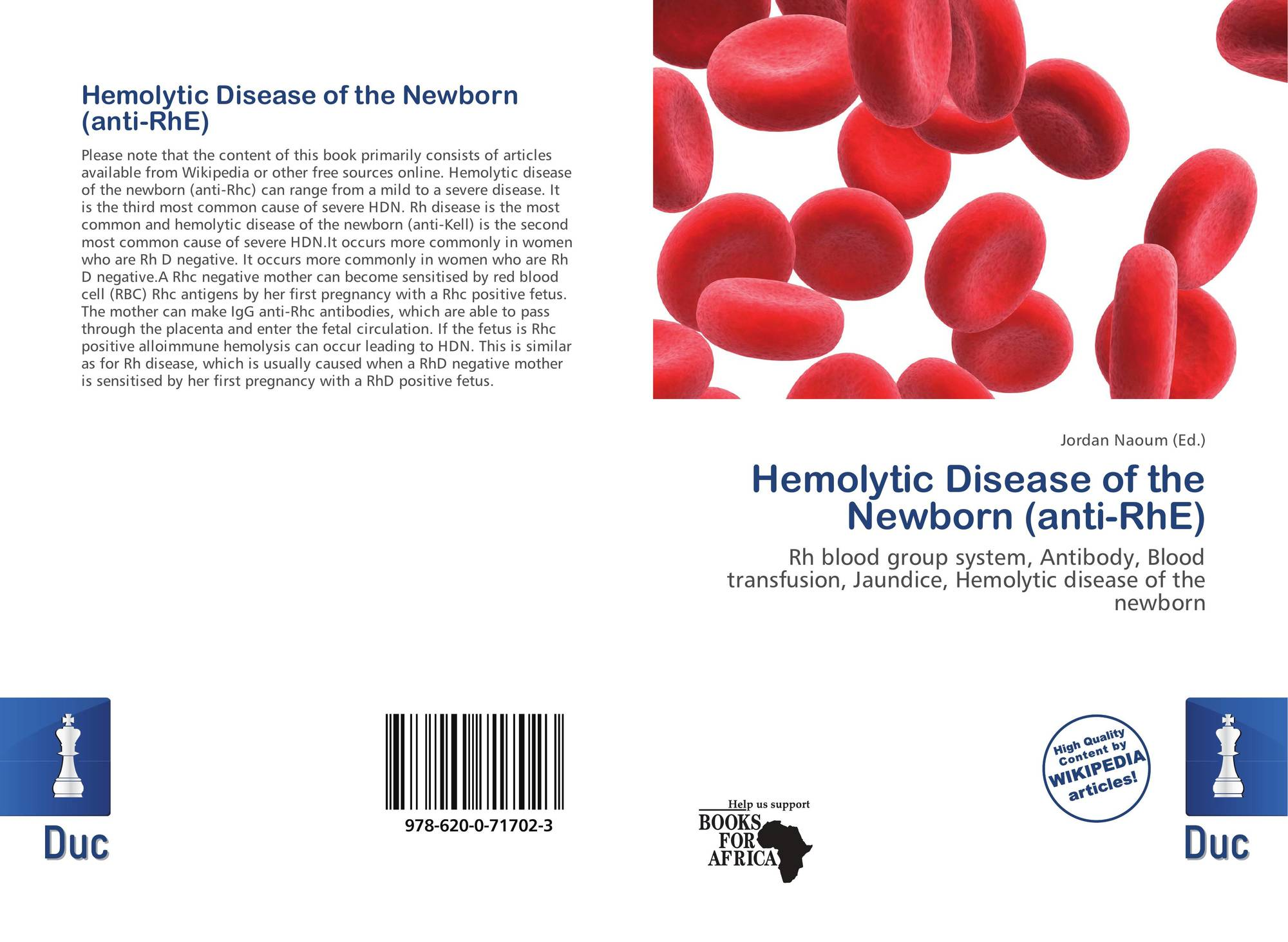 hemolytic disease of the fetus biology essay Rhesus disease is a condition where antibodies in a pregnant woman's blood destroy her baby's blood cells it's also known as haemolytic disease of the foetus and newborn (hdfn.