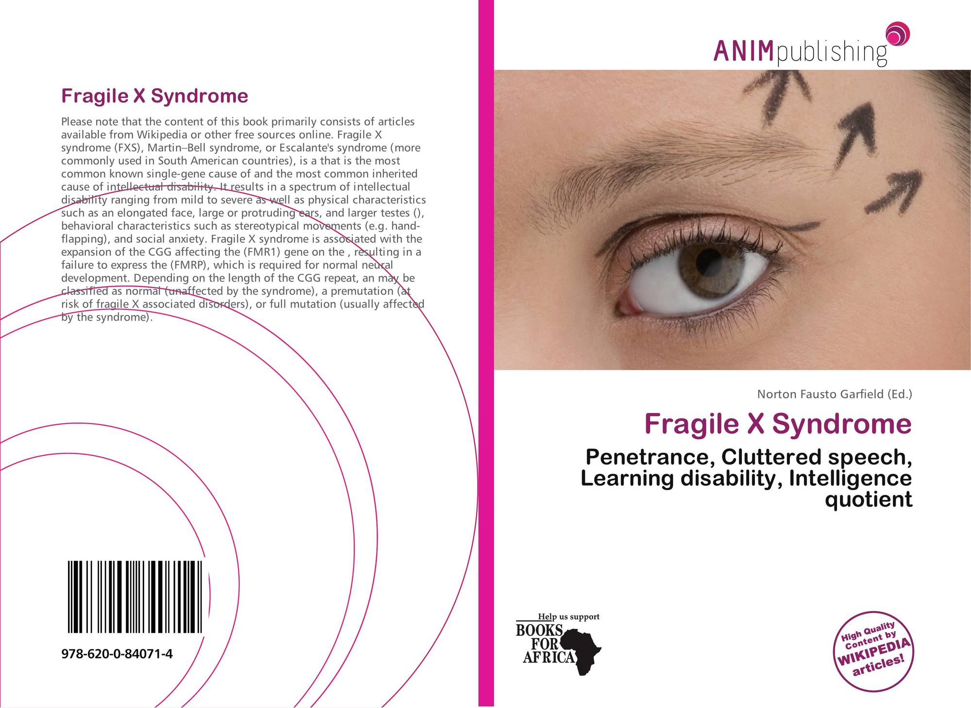a study on fragile x syndrome 2012-4-11  fragile x syndrome,  syndrome had been made this study was conducted in order to assess such a connection and provide a possible mechanism for chromosome loss.