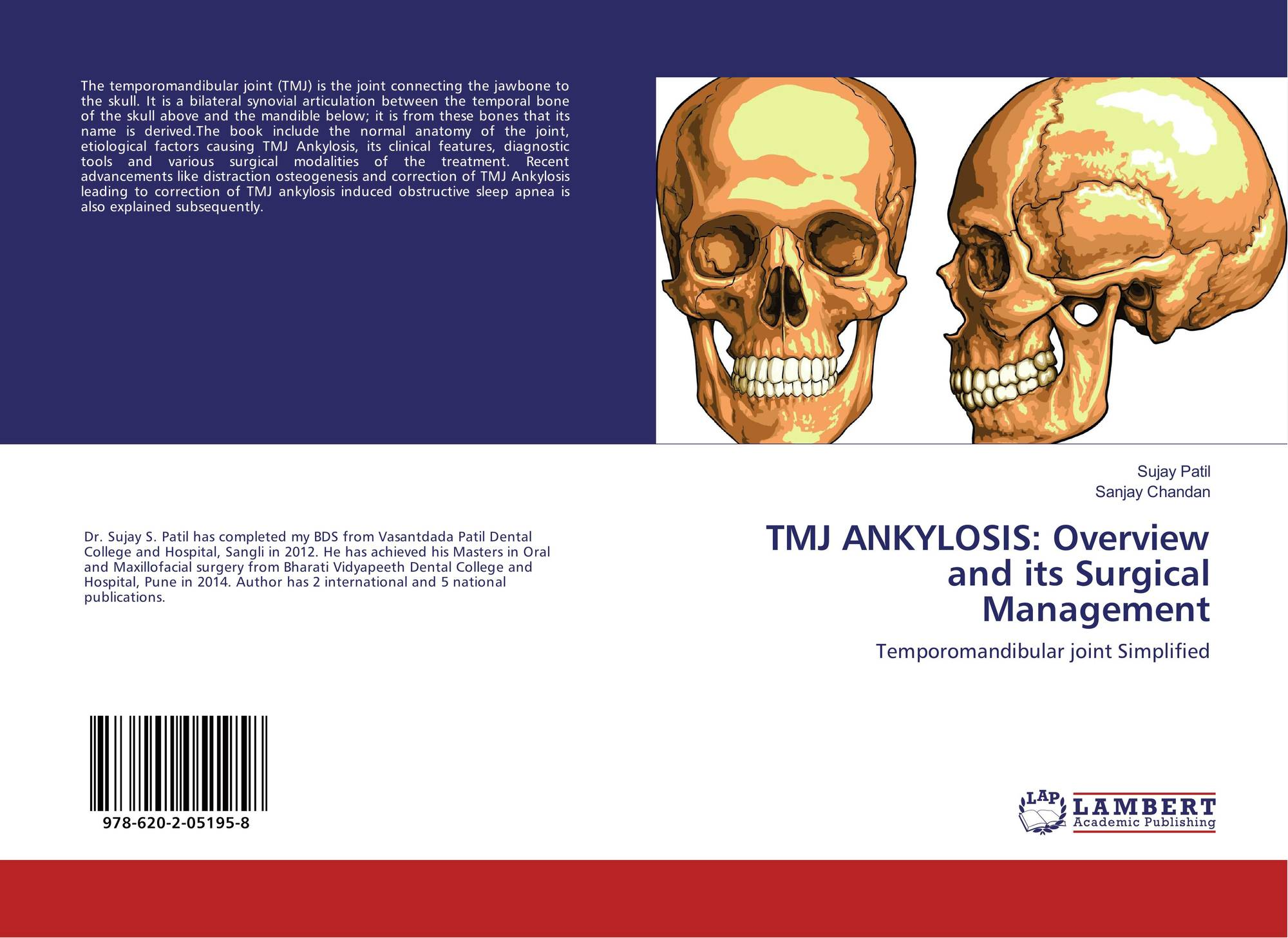 TMJ ANKYLOSIS: Overview and its Surgical Management, 978-620-2-05195 ...