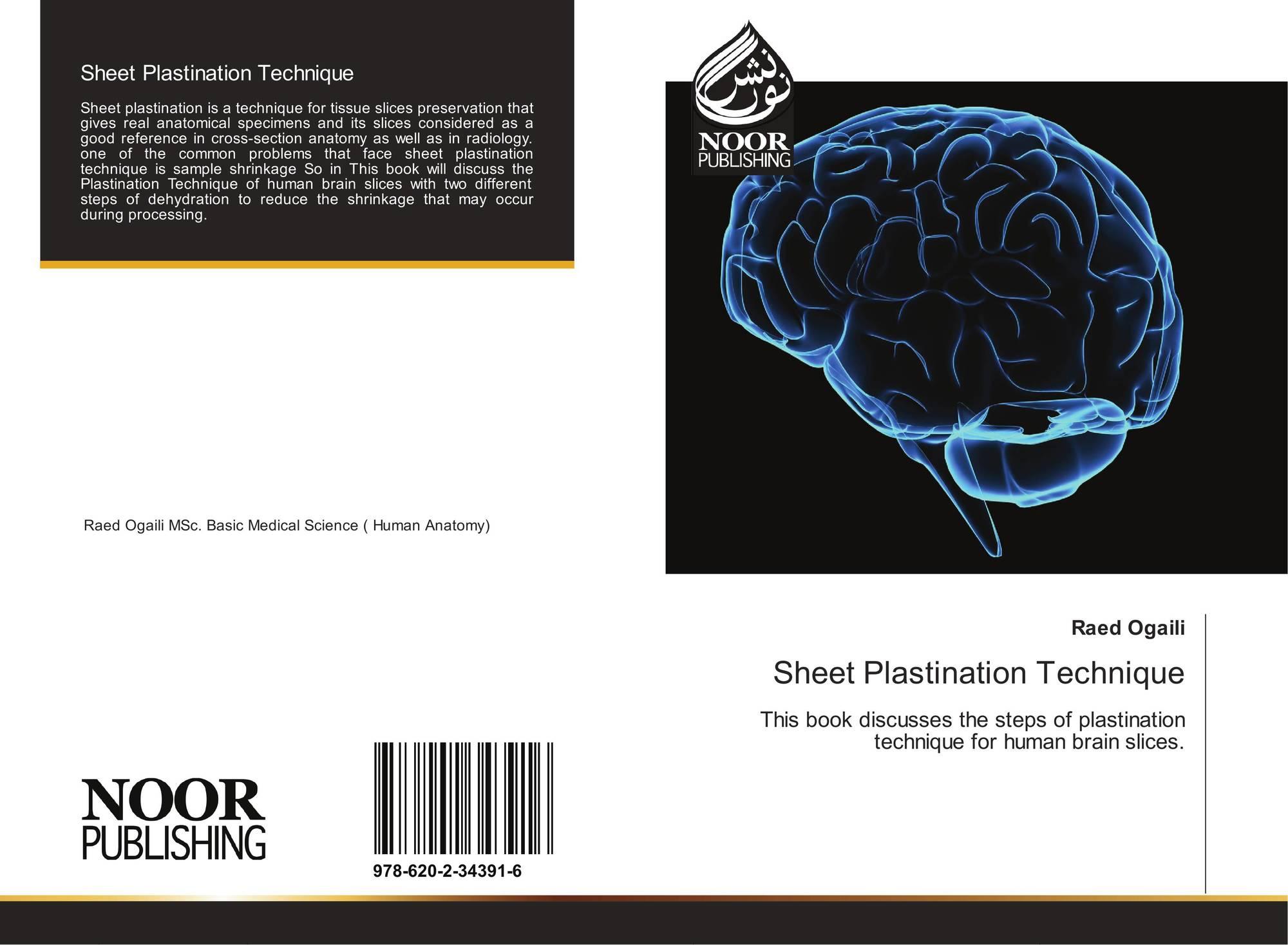 Sheet Plastination Technique, 978-620-2-34391-6, 6202343915 ...