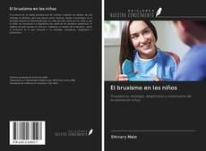 Bookcover of El bruxismo en los niños