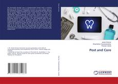 Bookcover of Post and Core