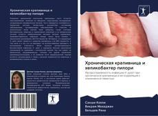 Bookcover of Хроническая крапивница и хеликобактер пилори