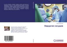 Bookcover of Хирургия сосудов