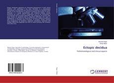 Bookcover of Ectopic decidua