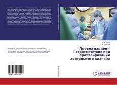 """Bookcover of """"Протез-пациент"""" несоответствие при протезировании аортального клапана"""