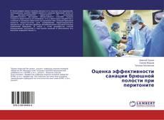Bookcover of Оценка эффективности санации брюшной полости при перитоните