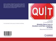 Bookcover of Alveolar Bone Loss in Smokers and Non smokers-A Study