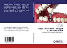 Bookcover of Learn & Unlearned Concepts of Dental Implants