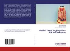 Couverture de Guided Tissue Regeneration- A Novel Technique