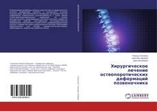 Обложка Хирургическое лечение остеопоротических деформаций позвоночника