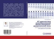 Bookcover of КТ диагностика новообразований билио-панкреато-дуоденальной зоны