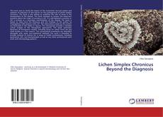 Bookcover of Lichen Simplex Chronicus Beyond the Diagnosis