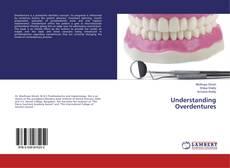 Bookcover of Understanding Overdentures