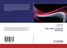 Bookcover of CAD CAM in Implant Dentistry