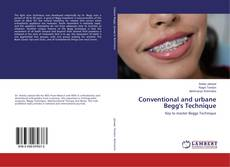 Bookcover of Conventional and urbane Begg's Technique