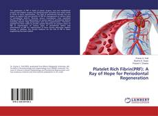 Bookcover of Platelet Rich Fibrin(PRF): A Ray of Hope for Periodontal Regeneration