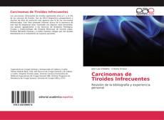 Bookcover of Carcinomas de Tiroides Infrecuentes