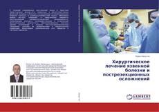 Bookcover of Хирургическое лечение язвенной болезни и пострезекционных осложнений