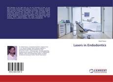 Обложка Lasers in Endodontics