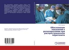 Bookcover of Обоснование показаний к релапаротомии при распространенном перитоните
