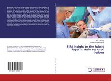 Bookcover of SEM insight to the hybrid layer in resin restored lesions