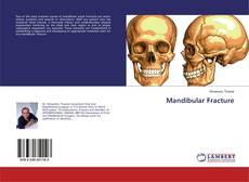 Bookcover of Mandibular Fracture