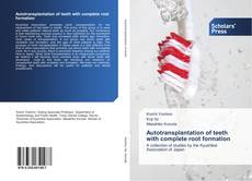 Bookcover of Autotransplantation of teeth with complete root formation
