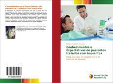 Bookcover of Conhecimentos e Expectativas de pacientes tratados com Implantes