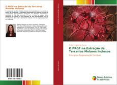 Capa do livro de O PRGF na Extração de Terceiros Molares Inclusos