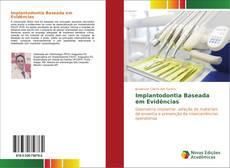 Borítókép a  Implantodontia Baseada em Evidências - hoz