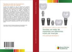 Bookcover of Tensões ao redor de implantes em diferentes níveis de inserção