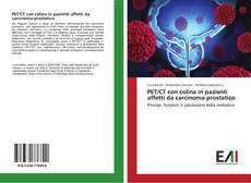 Bookcover of PET/CT con colina in pazienti affetti da carcinoma prostatico