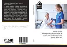 Обложка Carcinome épidermoïde de la vessie sur lithiase vésicale