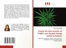Cancer du sein avancé: Le T-DM1 une double charge contre la tumeur的封面