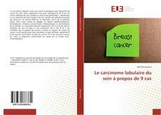 Обложка Le carcinome lobulaire du sein à propos de 9 cas