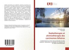 Copertina di Radiothérapie et chimiothérapie des carcinomes biliaires