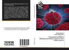Bookcover of Expression of Matrix Metalloproteinase 2 and 9 in oral lichen planus