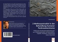 Bookcover of 2-Methoxyestradiol in der Behandlung humaner Pankreaskarzinome