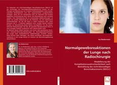 Capa do livro de Normalgewebsreaktionen der Lunge nach Radiochirurgie