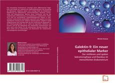 Borítókép a  Galektin-9: Ein neuer epithelialer Marker - hoz