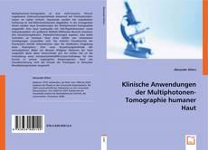 Klinische Anwendungen der Multiphotonen-Tomographie humaner Haut kitap kapağı