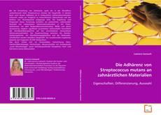 Borítókép a  Die Adhärenz von Streptococcus mutans an zahnärztlichen Materialien - hoz