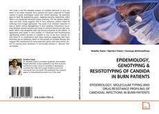 Bookcover of EPIDEMIOLOGY, GENOTYPING
