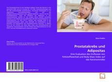 Portada del libro de Prostatakrebs und Adipositas