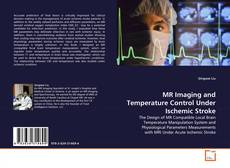Bookcover of MR Imaging and Temperature Control Under Ischemic Stroke